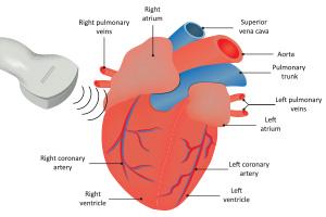 iEcho 科目6: 进阶超声知识 – 心室功能